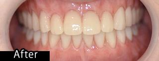 即時義歯afrer