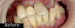 即時義歯before