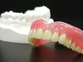 保険の入れ歯との違い