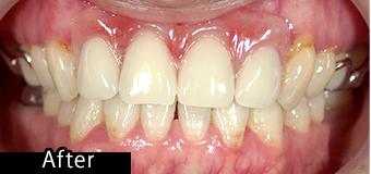 部分入れ歯できれいになった症例 after