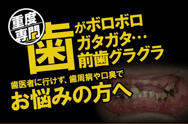 歯がボロボロガタガタ・・・前歯グラグラ歯医者に行けず、歯周病や口臭でお悩みの方へ