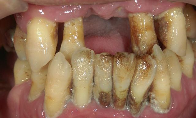 若い の に 総 入れ歯