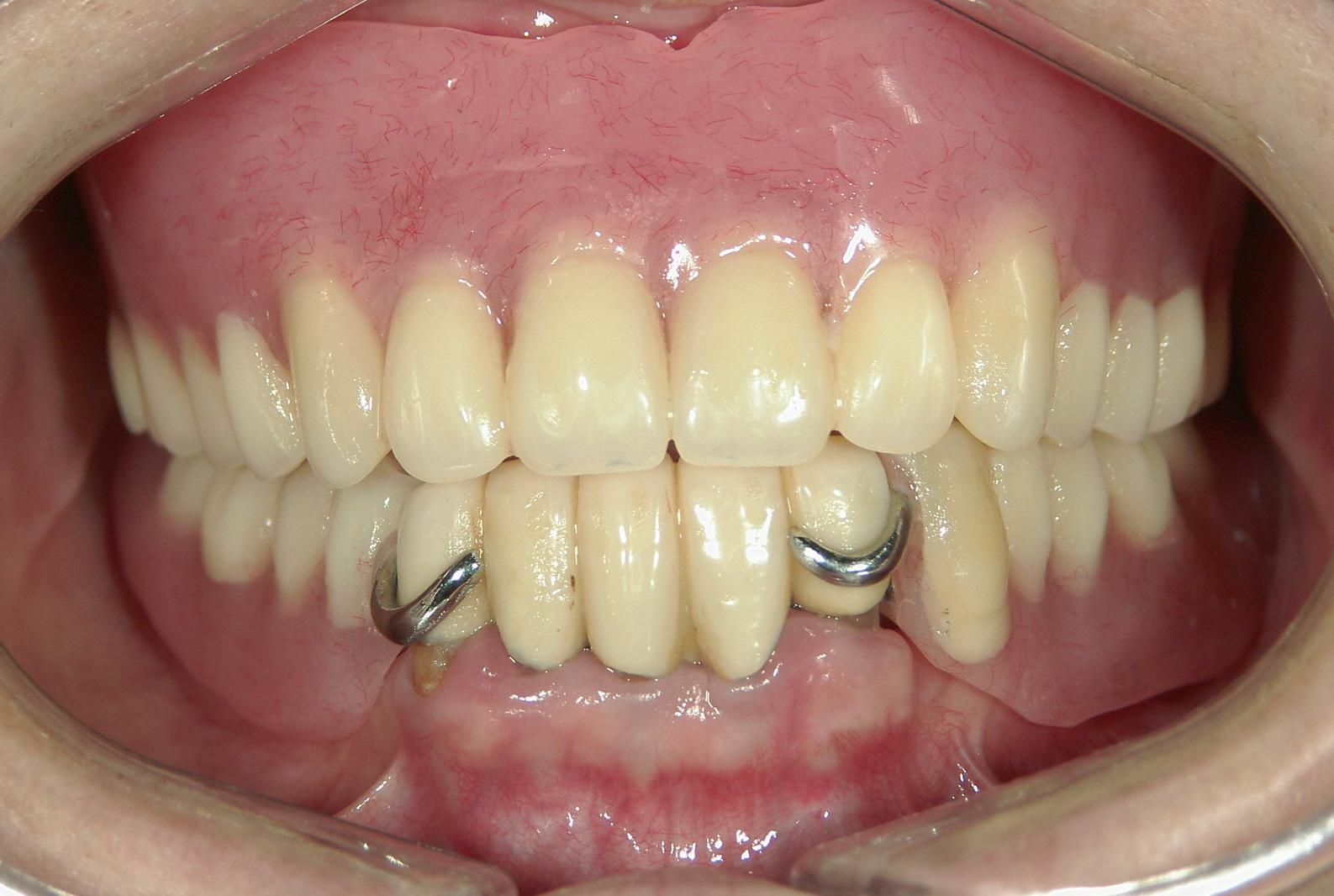 奥歯 部分 入れ歯