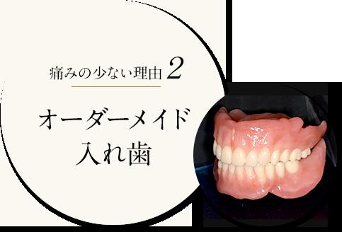 痛みの少ない理由2 オーダーメイド入れ歯