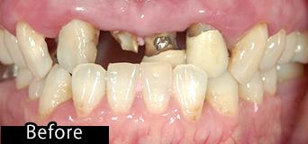 部分入れ歯できれいになった症例 before