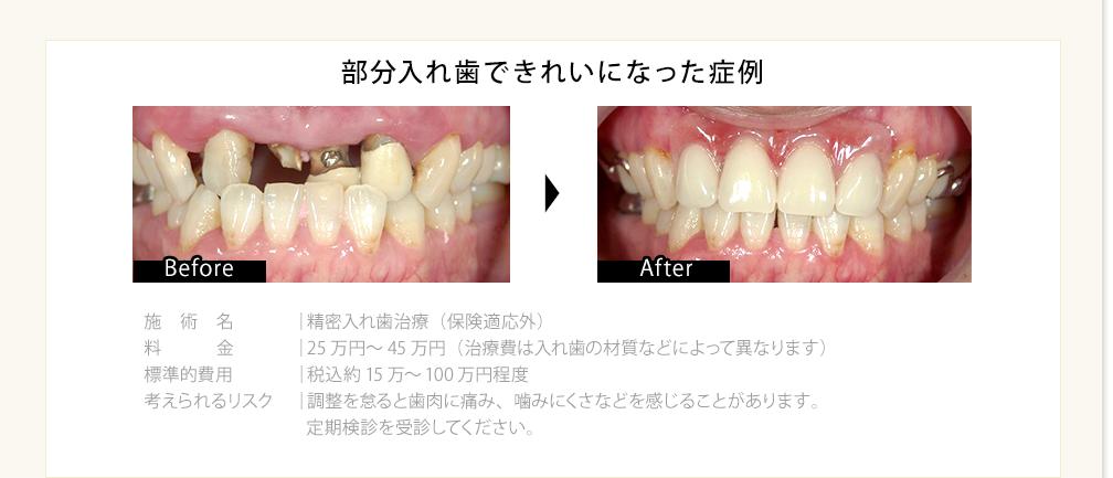 部分入れ歯できれいになった症例
