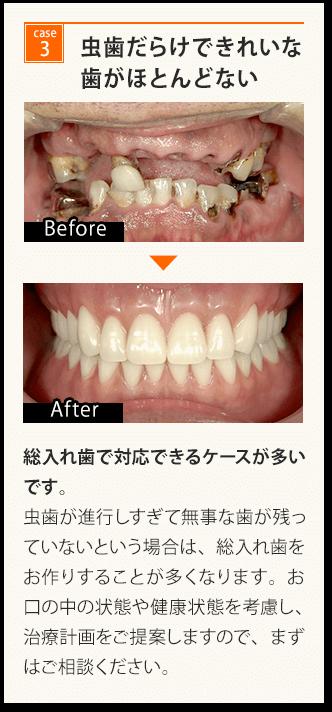 虫歯だらけできれいな歯がほとんどない
