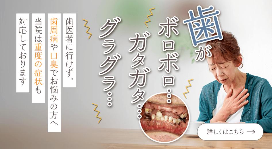 歯医者に行けず、歯周病や口臭でお悩みの方へ
