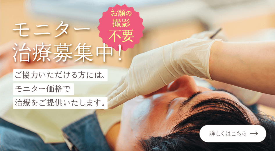 モニター治療募集中!最大3万円割引